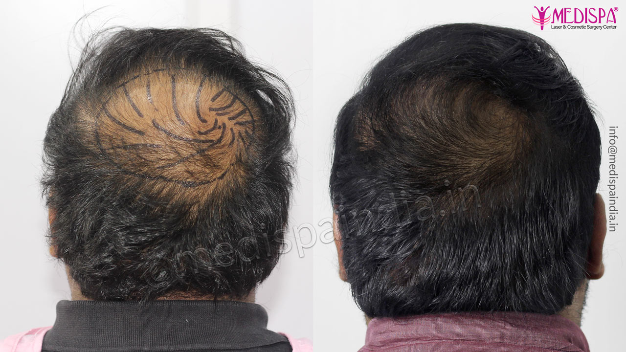 crown hair transplant india