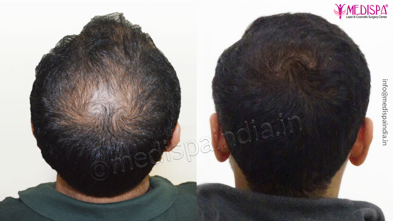 vertex hair transplant india