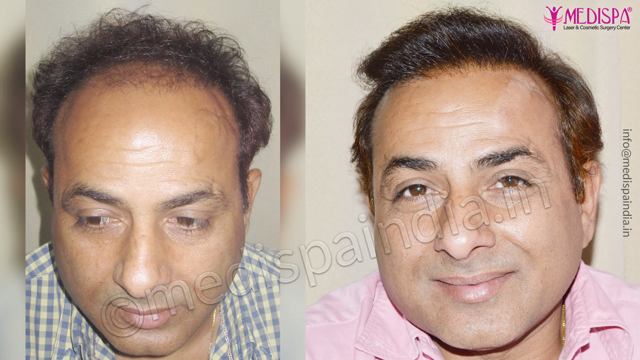 best wrong hair transplant results delhi