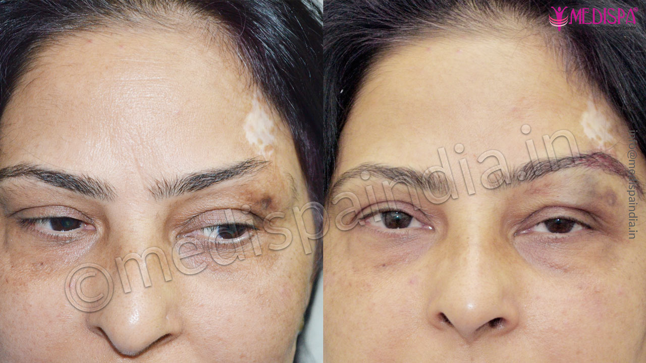 eyebrow hair transplant results india