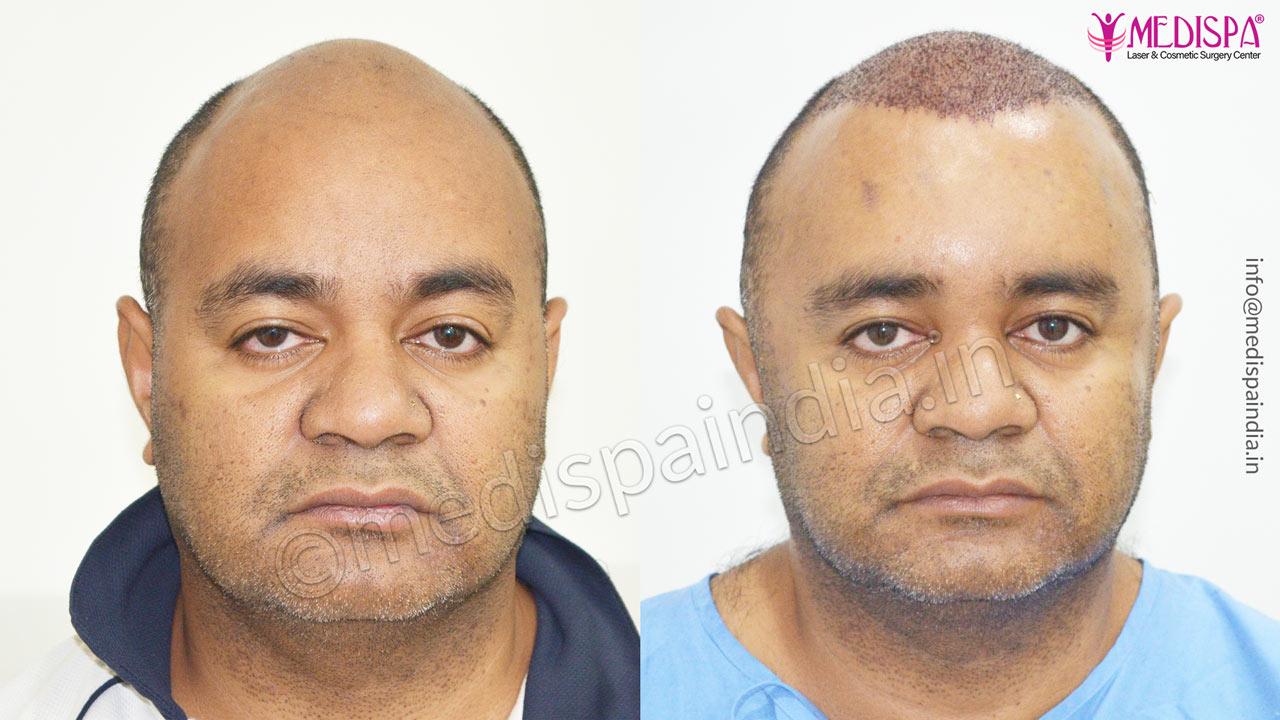 hair transplant in Australia