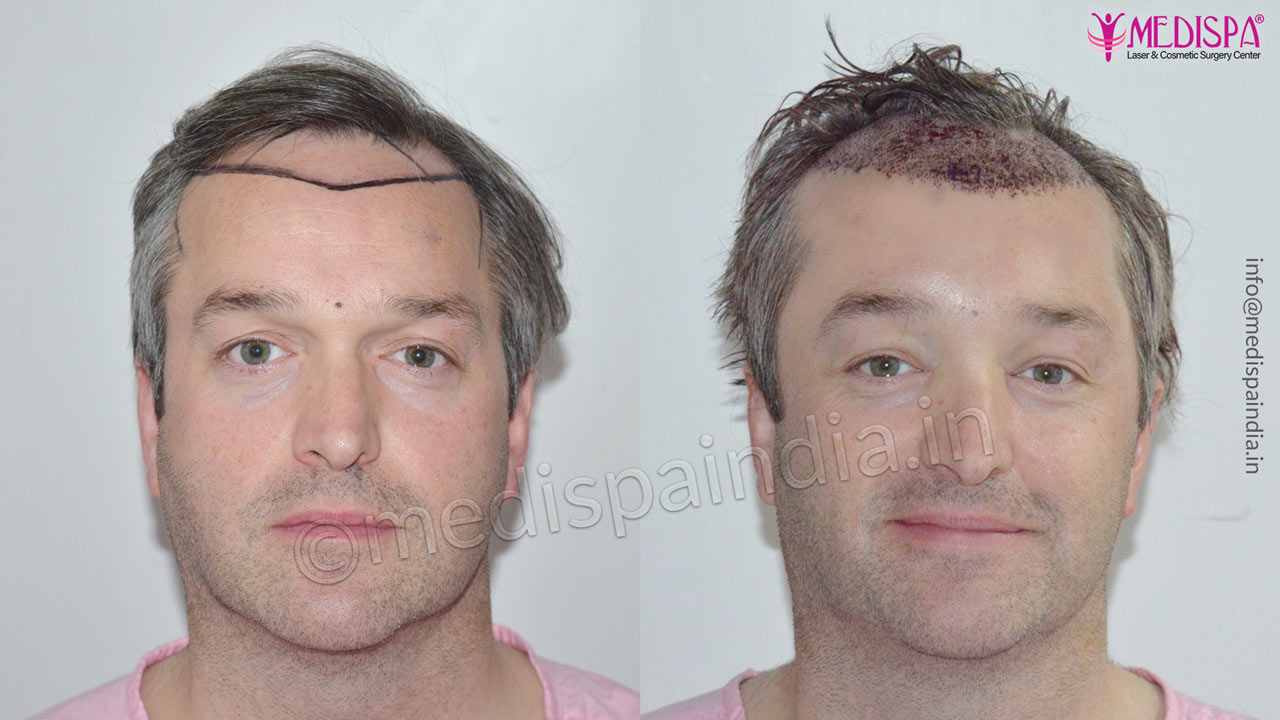 hair transplant cost in usa