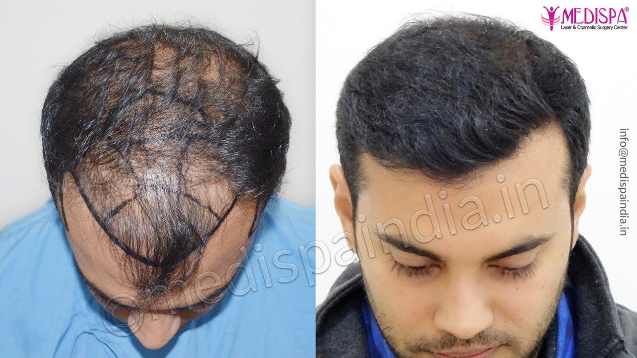 Jaipur hair transplant result