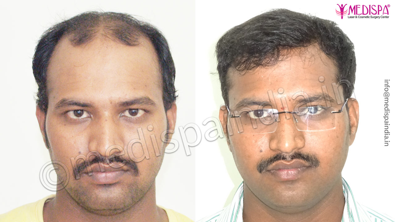 Bangalore hair transplant result