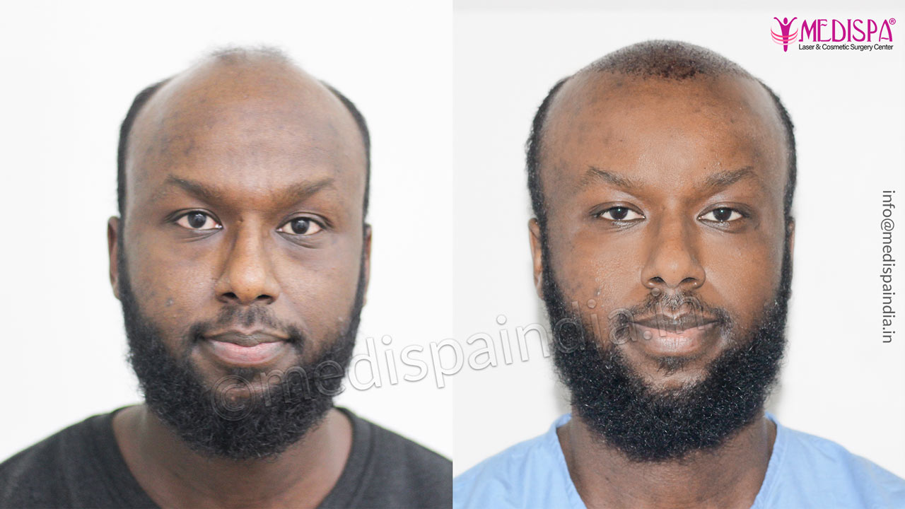 hair transplant sweden results