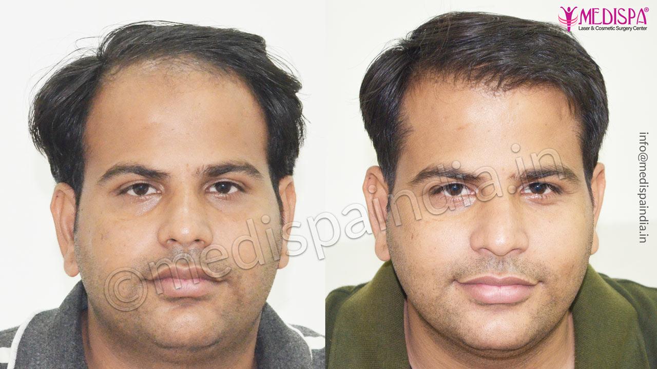 celebrity hair transplant