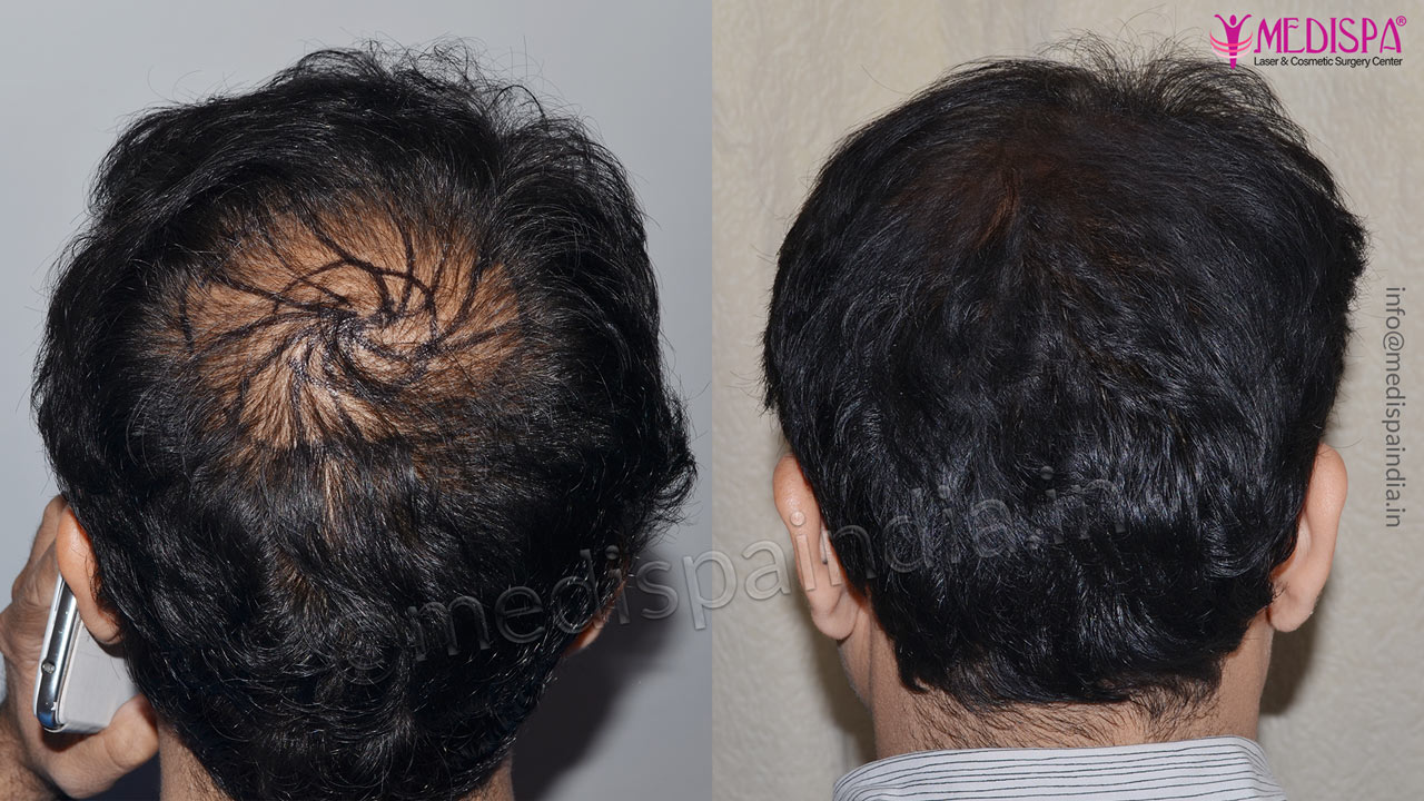 vertex hair transplant results india