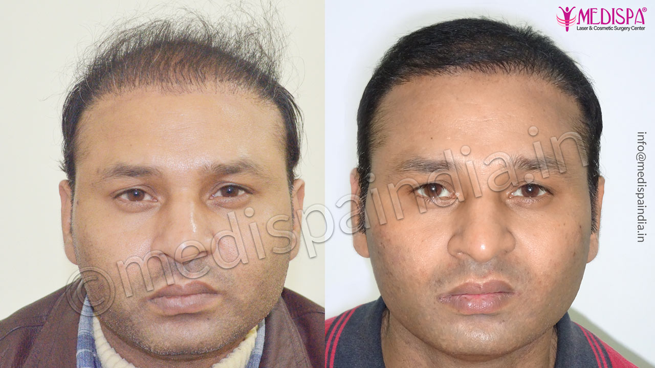 wrong hair transplant correction bangalore