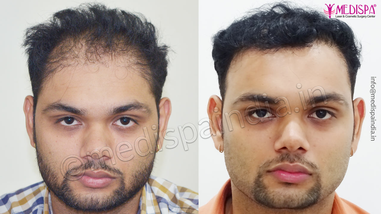 wrong hair transplant correction indore